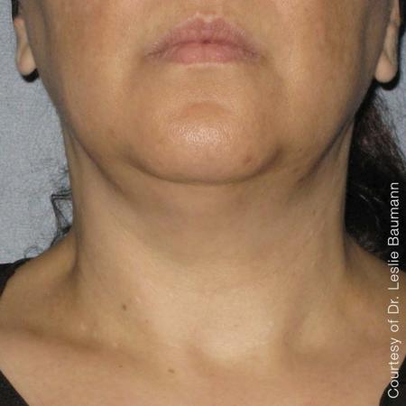 Ultherapy® - Neck: Patient 5 - After Image
