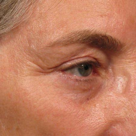 Ultherapy® - Brow: Patient 6 - Before Image