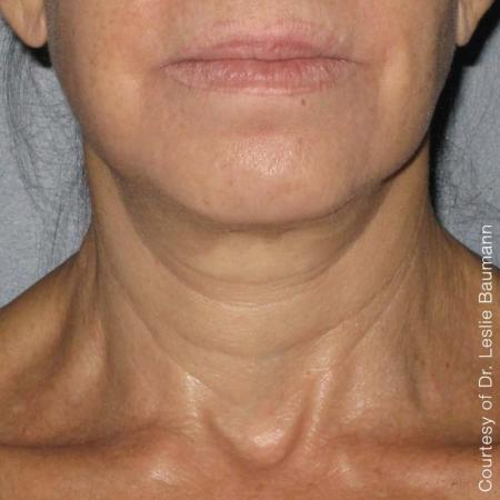 Ultherapy® - Neck: Patient 7 - After Image