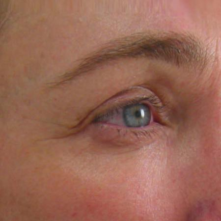 Ultherapy® - Brow: Patient 8 - After Image