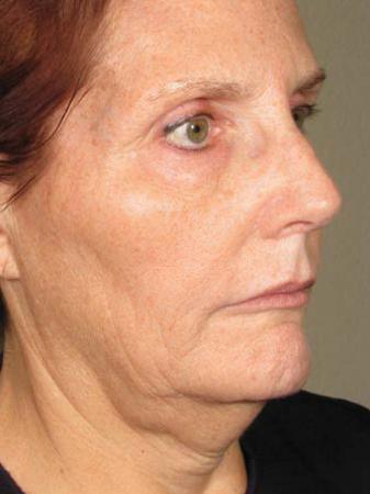 Ultherapy® - Face: Patient 8 - Before Image
