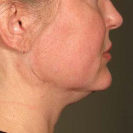 Ultherapy® - Chin: Patient 18 - Before Image