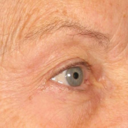 Ultherapy® - Brow: Patient 1 - Before Image