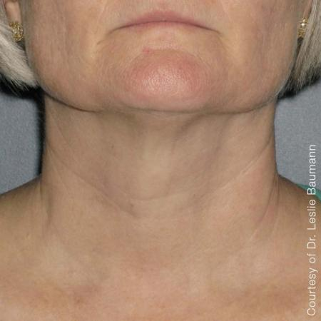 Ultherapy® - Neck: Patient 1 - After Image