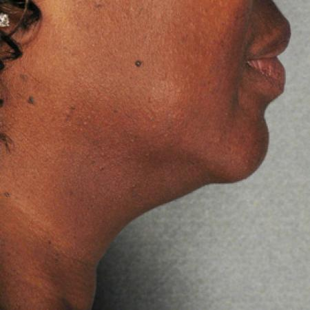 Ultherapy® - Chin: Patient 4 - Before Image 1