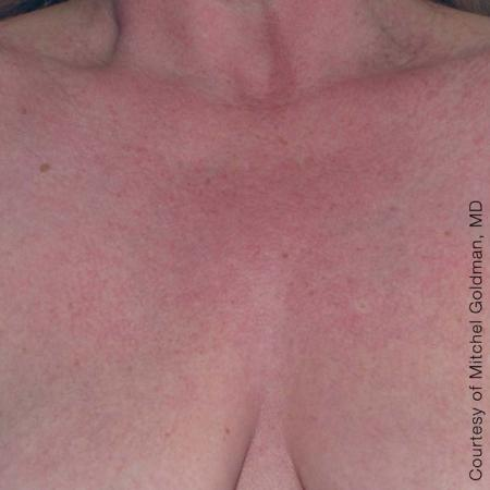Ultherapy® - Décolletage: Patient 1 - After Image