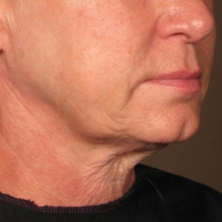 Ultherapy® - Chin: Patient 5 - After Image