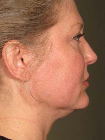 Ultherapy® - Face: Patient 6 - Before Image