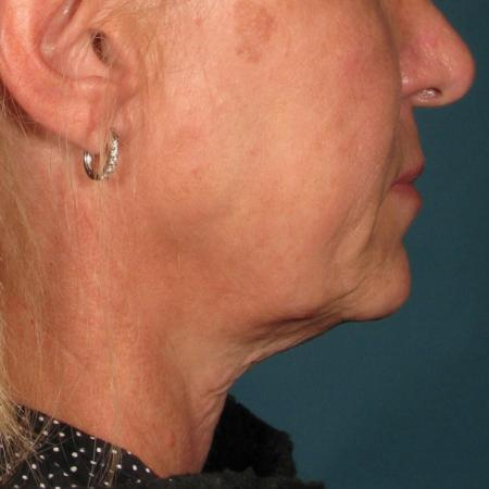 Ultherapy® - Chin: Patient 28 - Before Image