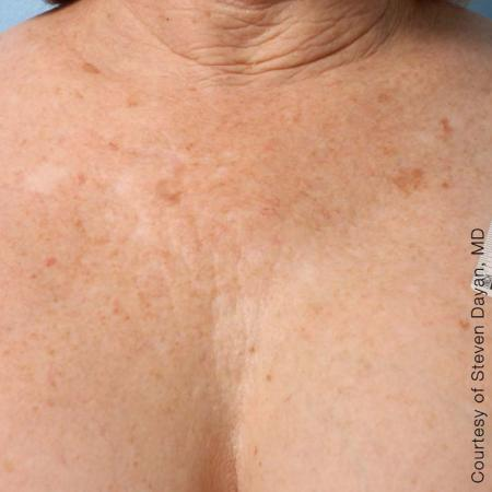Ultherapy® - Décolletage: Patient 6 - After Image