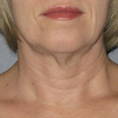 Ultherapy® - Neck: Patient 9 - Before Image