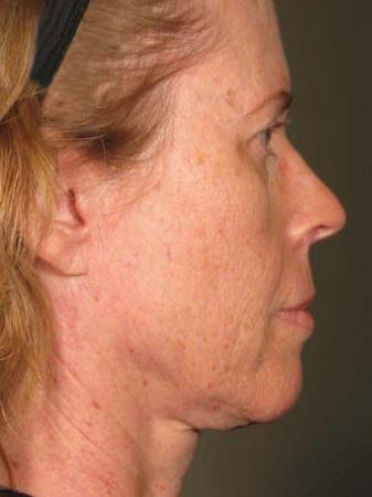 Ultherapy® - Face: Patient 20 - Before Image 1