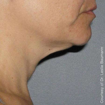 Ultherapy® - Neck: Patient 4 - After Image