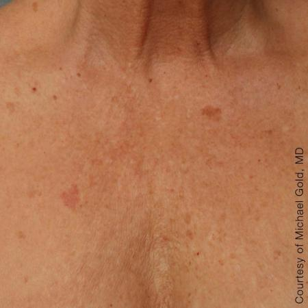 Ultherapy® - Décolletage: Patient 9 - After Image