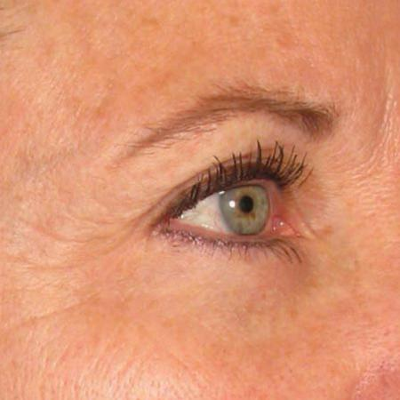 Ultherapy® - Brow: Patient 9 - After Image