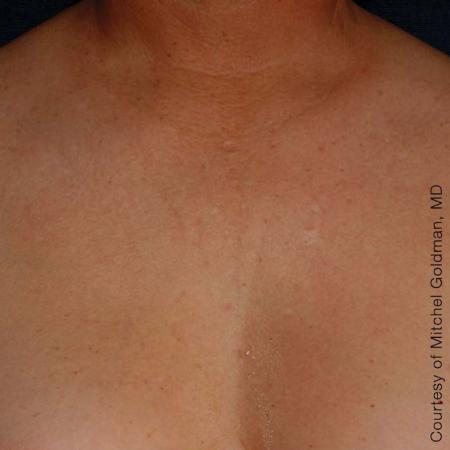 Ultherapy® - Décolletage: Patient 2 - After Image