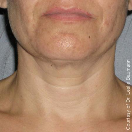 Ultherapy® - Neck: Patient 3 - After Image