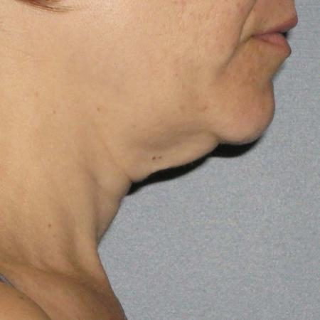 Ultherapy® - Neck: Patient 4 - Before Image