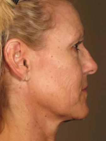Ultherapy® - Face: Patient 5 - After Image