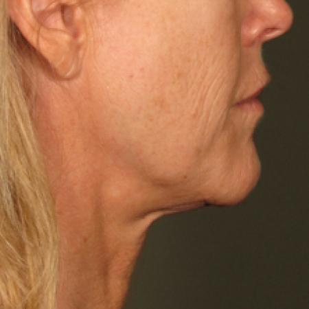 Ultherapy® - Chin: Patient 17 - After Image