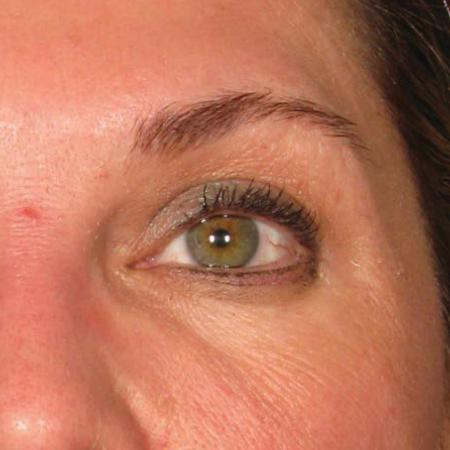 Ultherapy® - Brow: Patient 12 - After Image 1
