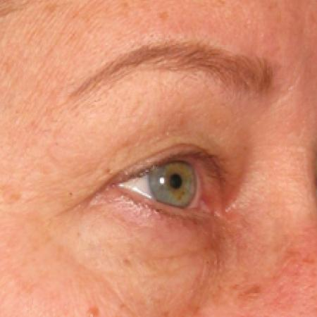 Ultherapy® - Brow: Patient 4 - After Image