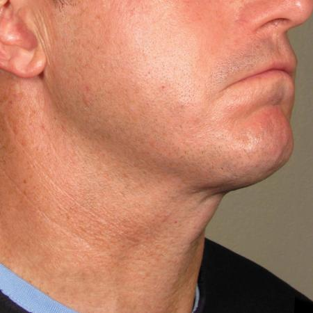 Ultherapy® - Chin: Patient 33 - After Image 1
