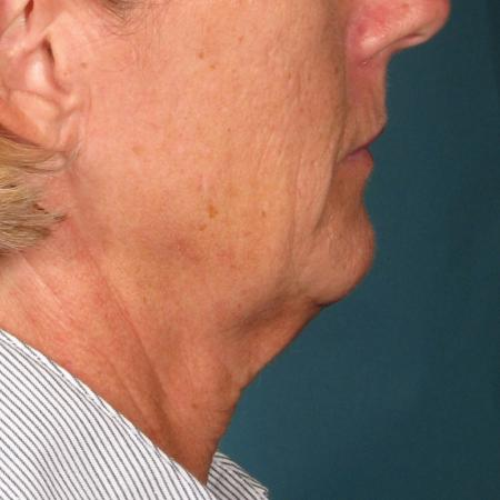 Ultherapy® - Chin: Patient 35 - Before 1
