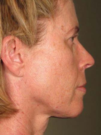 Ultherapy® - Face: Patient 20 - After Image 1