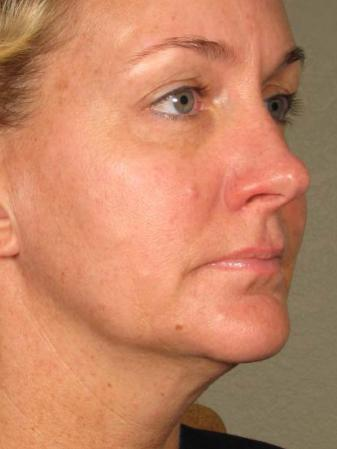 Ultherapy® - Face: Patient 12 - Before 1