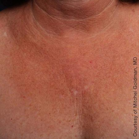 Ultherapy® - Décolletage: Patient 11 - After Image 1