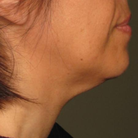 Ultherapy® - Chin: Patient 14 - After Image 1