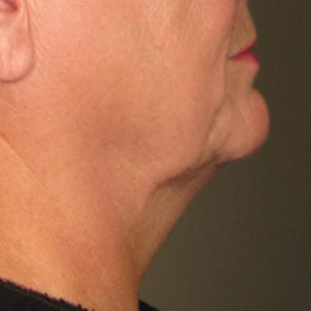 Ultherapy® - Chin: Patient 13 - Before Image 1
