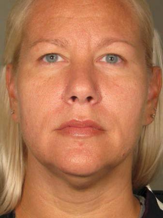 Ultherapy® - Face: Patient 16 - After 1