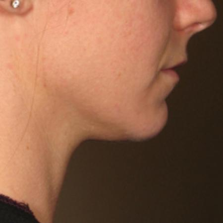 Ultherapy® - Chin: Patient 15 - After Image 1