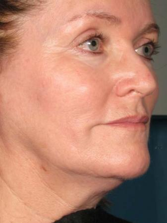 Ultherapy® - Face: Patient 22 - Before 1
