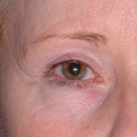 Ultherapy® - Brow: Patient 7 - After Image