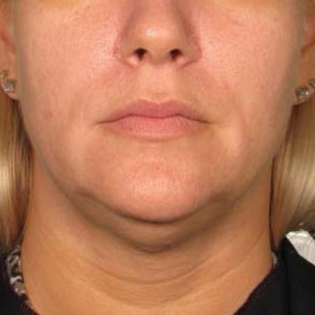 Ultherapy® - Chin: Patient 29 - Before Image