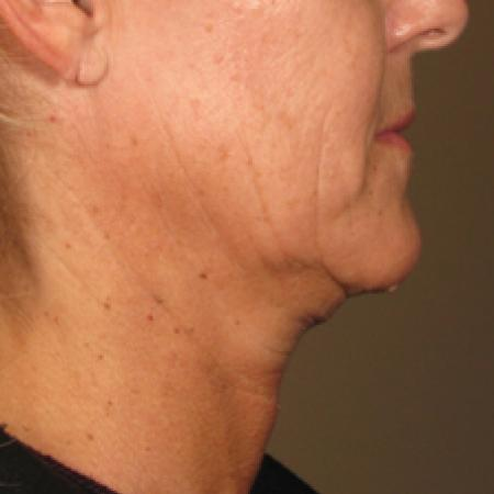 Ultherapy® - Chin: Patient 2 - Before Image