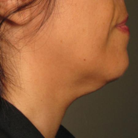 Ultherapy® - Chin: Patient 14 - Before Image 1