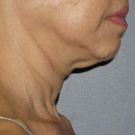 Ultherapy® - Neck: Patient 8 - Before Image 1