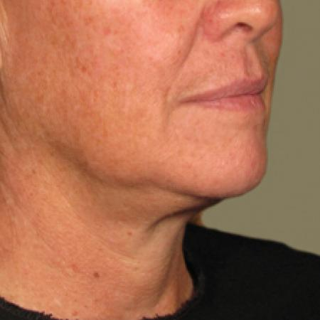 Ultherapy® - Chin: Patient 6 - After Image