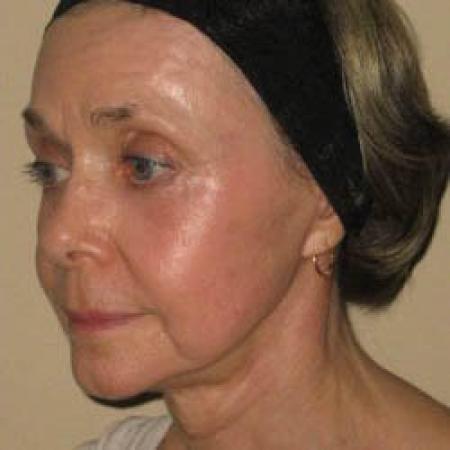 Facelift - Patient 2 -  After Image 3