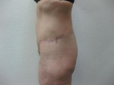 Body Lift - Patient 8 -  After Image 7