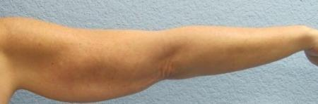 Arm Lift Surgery - Patient 3 - Before Image 4
