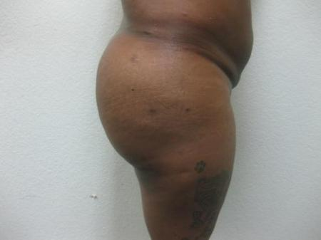 Brazilian Butt Lift - Patient 5 -  After Image 5