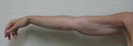 Arm Lift Surgery - Patient 3 -  After Image 2