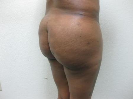 Brazilian Butt Lift - Patient 5 -  After Image 4