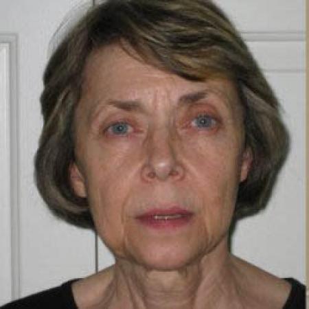 Facelift - Patient 2 - Before Image 4