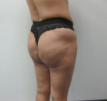 Brazilian Butt Lift - Patient 4 -  After Image 2